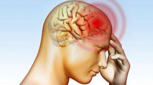 Beyin Kanaması Belirtileri ve Nedenleri