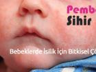 Bebeklerde İsilik İçin Bitkisel Çözüm