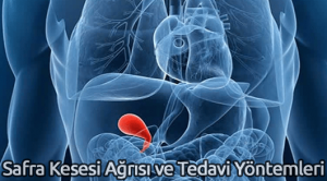 Safra Kesesi Ağrısı ve Tedavi Yöntemleri