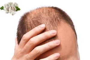 Saçkıran İçin Bitkisel Tedavi Yöntemleri