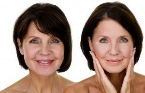 Yüz Germe Estetiği Nedir