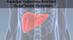 Karaciğer Yağlanması Belirtileri ve Doğal Tedavi Yöntemleri